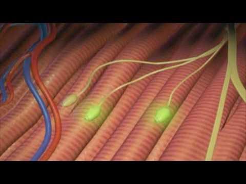 Électromyogramme (EMG) - Neuropathie.org